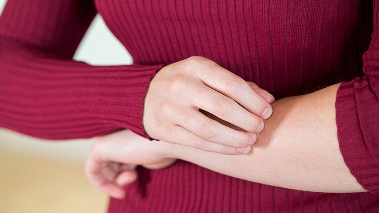 Ürtiker, kadın hastalarda daha sık görülüyor