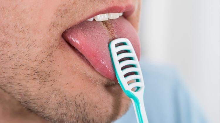 4-Dilin fırçalanmaması