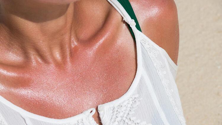 15-20 dakika güneş banyosu yapın