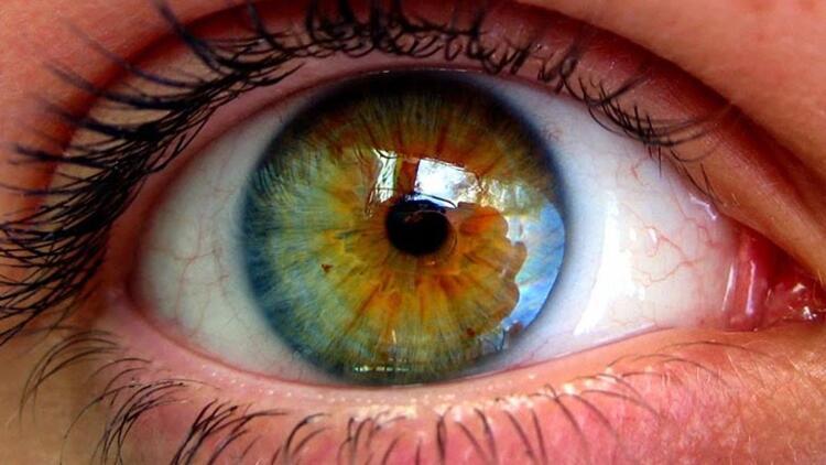 Sarı nokta hastalığını önlemenin tek yolu iyi beslenmek ve güneş gözlüğü kullanmak
