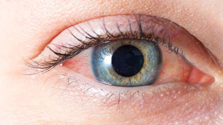 Bulanık ve çarpık görme sarı nokta hastalığı belirtisi