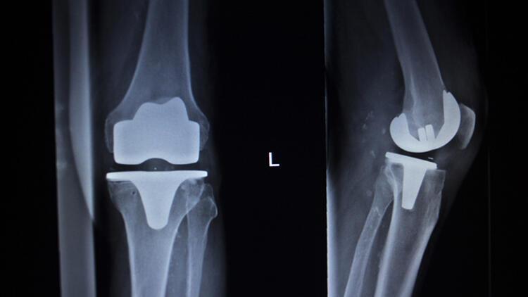 Diz protezi ameliyatı sonrası nelere dikkat edilmeli