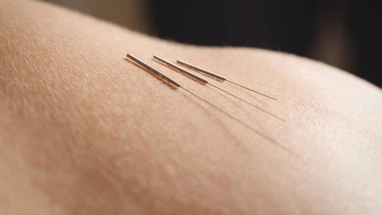 Akupunktur seansı kaç dakika sürüyor
