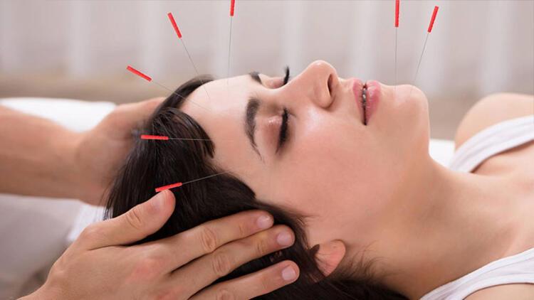 Kozmetik akupunktur kimlere uygulanmaz
