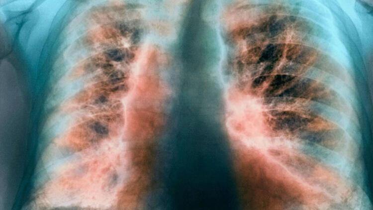 Eğer 20 yıl boyunca günde bir paket sigara içtiyseniz dikkat