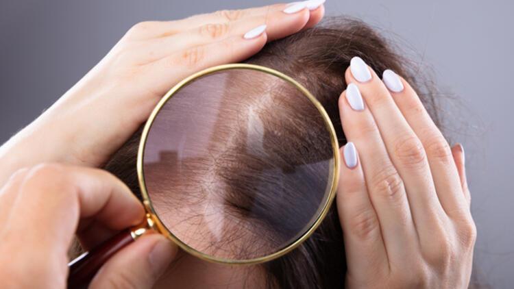 Dökülen saç ne kadar sürede uzar