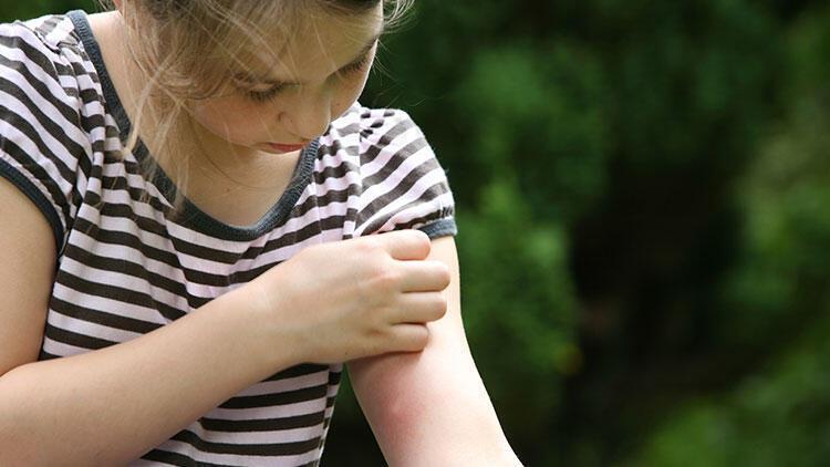 Isırıklar kaşınıyor çünkü onlara alerjimiz var