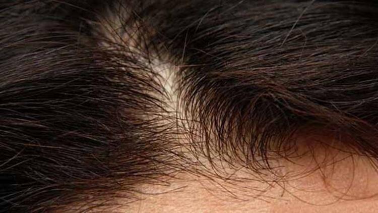 Saç derinize yağ terapisi uygulayın