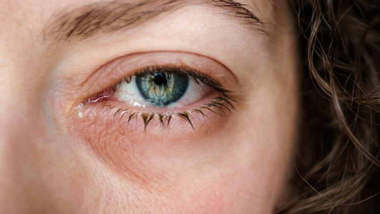 Alerjik konjonktivit neden sonbaharda artış gösteriyor