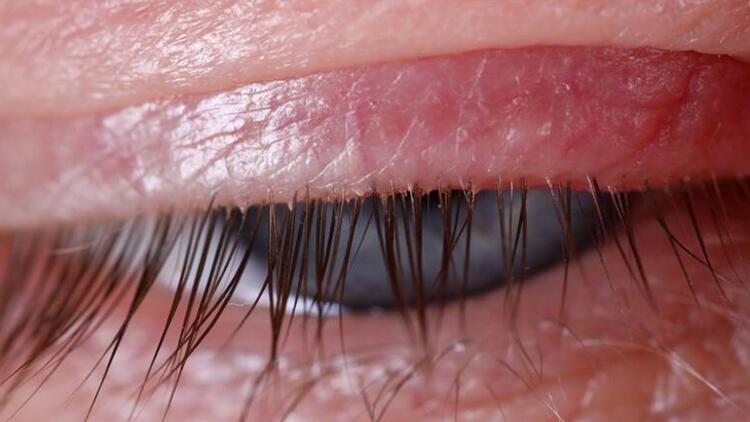 Alerjik konjonktivitten nasıl korunabiliriz