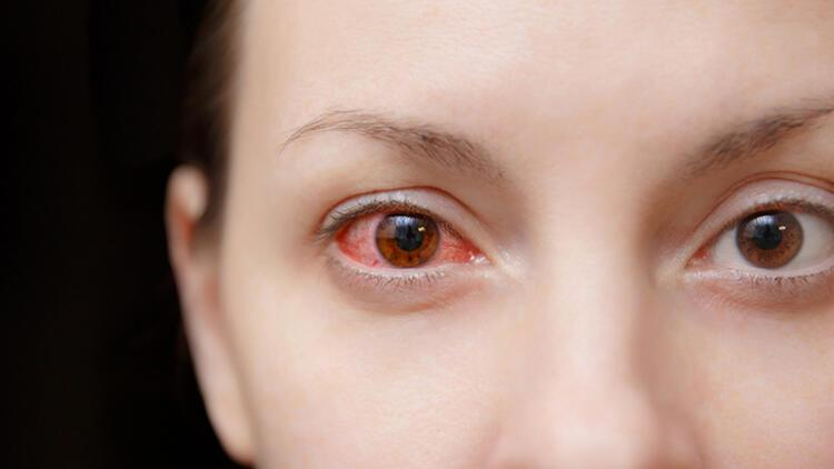 Alkol gözleri işte böyle etkiliyor
