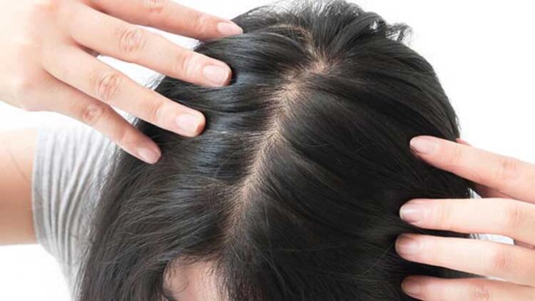 7-Saç kuruluğu ve dökülmesine karşı vitamin bakımı yapın