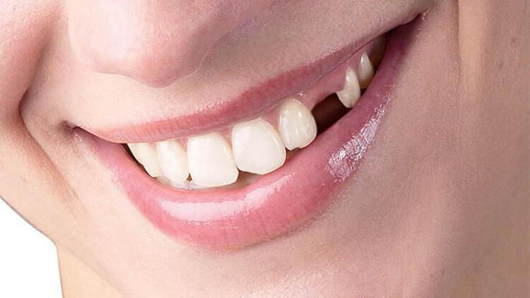 Erken teşhis diş kayıplarını önlenebiliyor