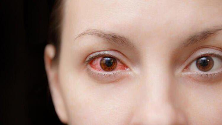Kalıcı göz kasları felcine neden olabilir