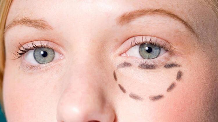 Göz altı morlukları nasıl tedavi edilir