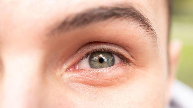 2-Göz altı ışık dolgusu
