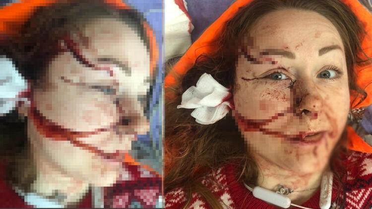 Son dakika! Ukrayna'lı kadın eşinden ayrılmak istediği için falçatalı  saldırıya uğradı! Yüzü tanınmaz halde - Güncel Haberler Milliyet