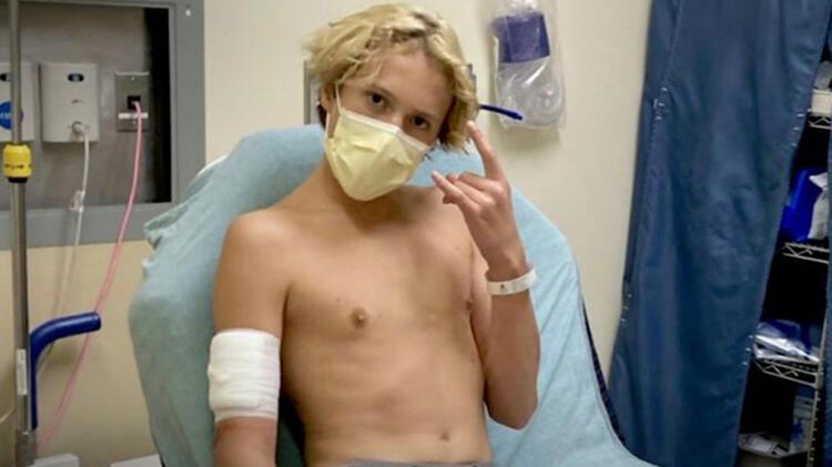 16 yaşındaki çocuk ısırıldığını anlamadı Dehşete düşüren görüntü