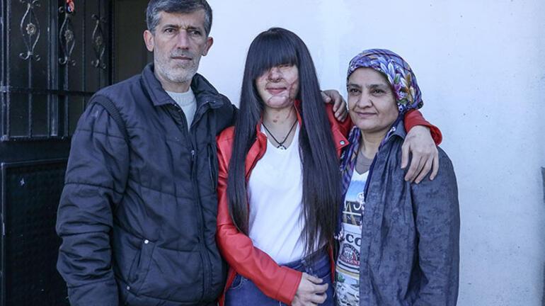 Asitli saldırı mağduru Berfin Özek ve ailesinden Cumhurbaşkanı Erdoğana teşekkür