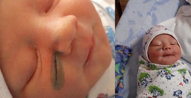 Rusyada doktorlar doğum sırasında bebeğin yüzünü kesti