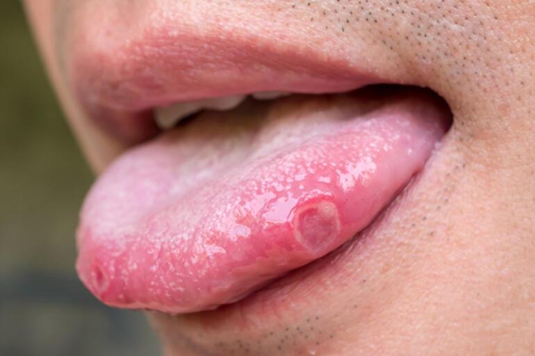 Dil yarası neden olur Dil yarası nasıl geçer - Dil yarası tedavileri