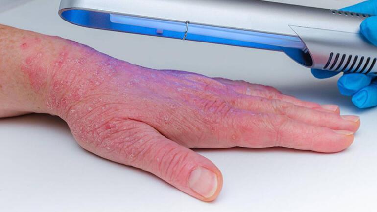 Sedef hastalığı neden olur, nasıl tedavi edilir Sedef hastalığı belirtileri nelerdir - Sedef hastalığına iyi gelen bitkiler
