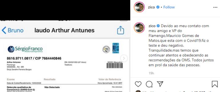Arthur Ziconun koronavirüs testi negatif çıktı