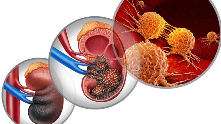 Böbrek kanseri erkeklerde daha fazla görülüyor Belirtileri...