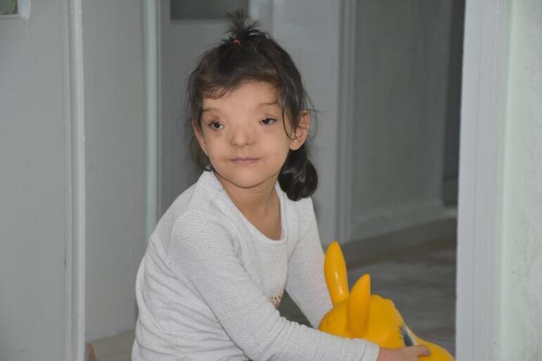 Dünyada sadece 4 ailede görülüyor Ayşenur yardım bekliyor