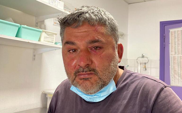 Fransa'da Ermeni protestocuların yaraladığı Türk genç: Bayrağı yakmasınlar diye gittik