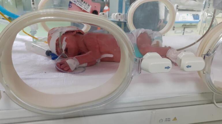Çift İki rahimli kadın ikiz doğurdu