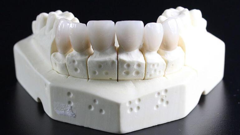 Bebeklerde diş çıkarma dönemi belirtileri nelerdir Diş çıkarma zamanı kaç gün sürer