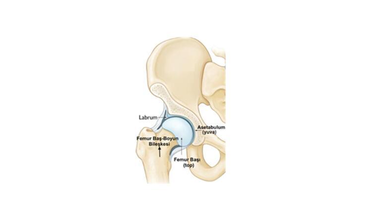 Gençlerde kalça ağrısının önemli bir nedeni: Kalça sıkışma sendromu