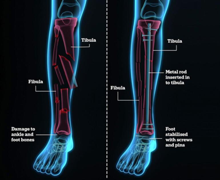 İşte Tiger Woodsun bacağının son hali