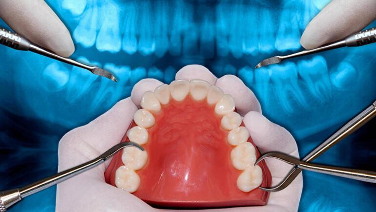 Maskeli yaşam ortodontik tedavileri nasıl etkiledi