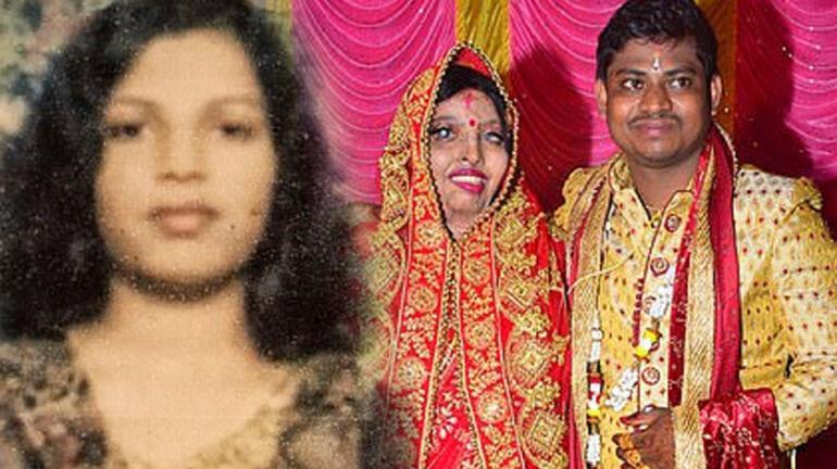 Hindistan'da asitli saldırıya uğrayan kadın yıllar sonra gerçek aşkı buldu