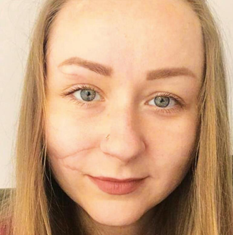Ukraynalı Hannanın yüzü falçatayla parçalanmıştı Yeni bir hayat kurdu
