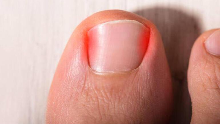 Tırnak batması nedir ve hangi yöntemle tedavi edilir