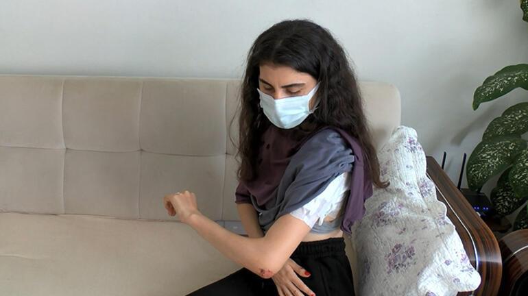 İstanbulda işe giden genç kıza sokak köpekleri saldırdı