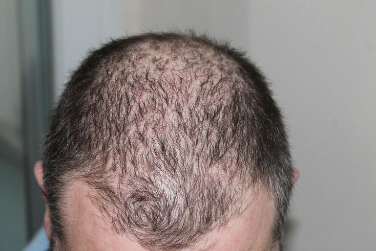 Bıttım Sabununun Faydaları Nelerdir Bıttım Sabunu Saça ve Yüze Nasıl Uygulanır