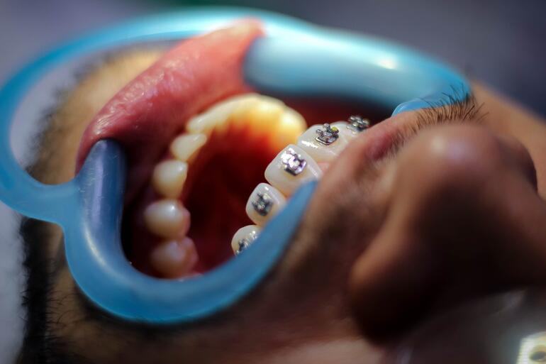 Diş Teli Fiyatları 2021: Şeffaf Plak ve Metal Diş Teli Fiyatları Ne Kadar