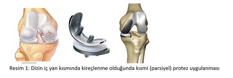 Robot yardımlı kısmi (parsiyel) diz protezi ameliyatı nedir