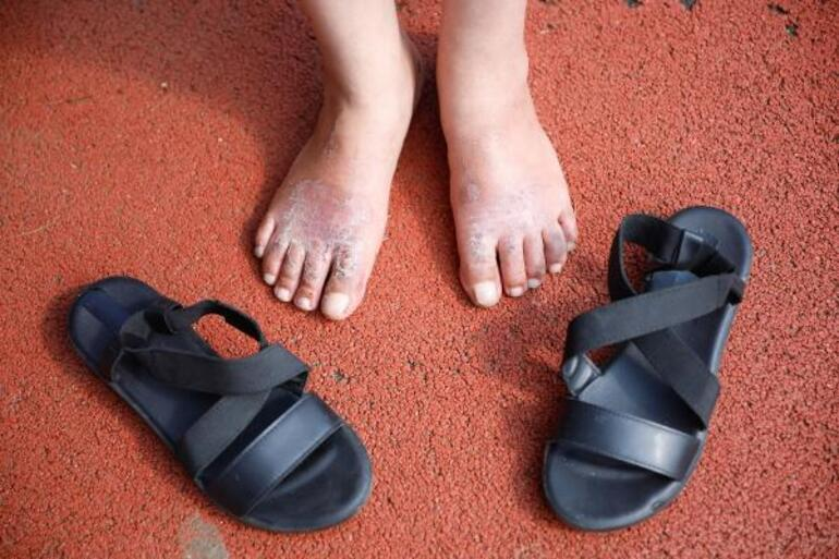 Bir gün giydiği ayakkabı perişan etti  Ayağımdan parça alınacak