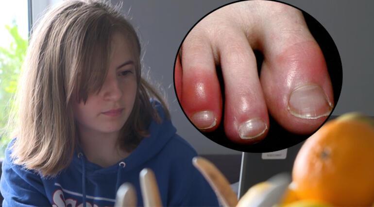 Kovid parmağı sendromu için bilim insanlarından yeni açıklama