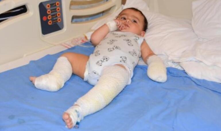 Odada bırakılan çaydanlık 10 aylık bebeğin üzerine devrildi